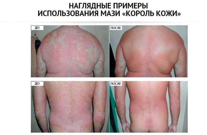 Лечение хронического псориаза негормональными мазями