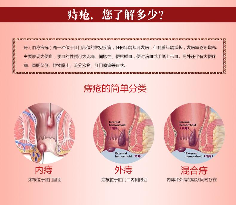 Китайская мускусная мазь от геморроя отзывы врачей состав инструкция аналог